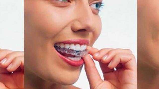 Sve što trebate znati o folijama za ispravljanje zuba