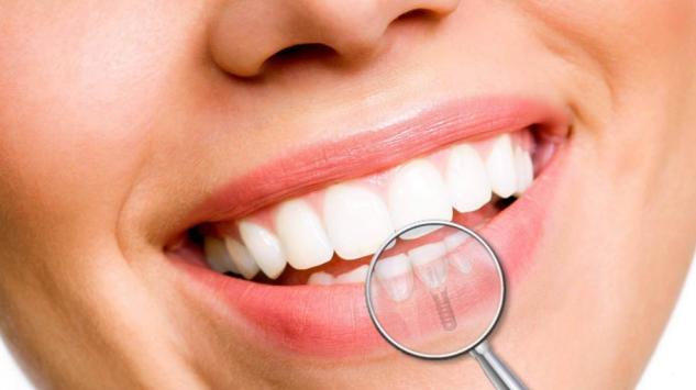5 savjeta za bolje održavanje zubnih implantata