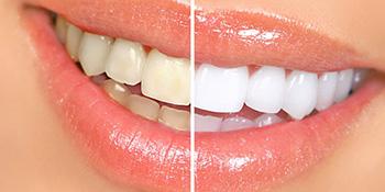 Izbijelite zube kod kuće uz prirodne recepte