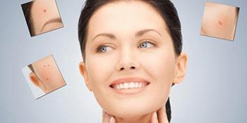 Šta znače bubuljice na određenom dijelu lica?