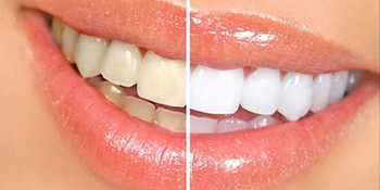 Kako izbijeliti zube za samo 5 minuta