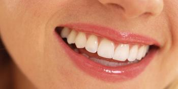 Uz pomoć ovog sastojka očistite zubni kamenac i naslage i uništite bakterije u ustima