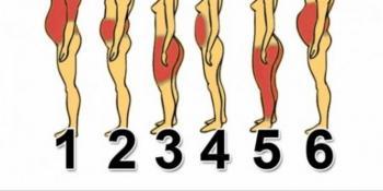 Kako se riješiti viška kilograma u odnosu na tip gojaznosti