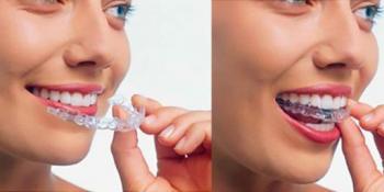 Sve što treba da znate o folijama za ispravljanje zuba