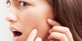 Zbog ovih naizgled bezazlenih navika, koža vašeg lica pati!