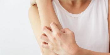 Simptomi dermatilomanije – opsesivnog kopanja po koži