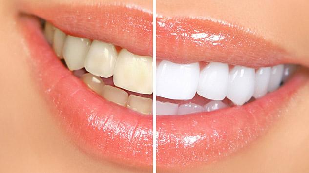 Избјељивање зуба дм