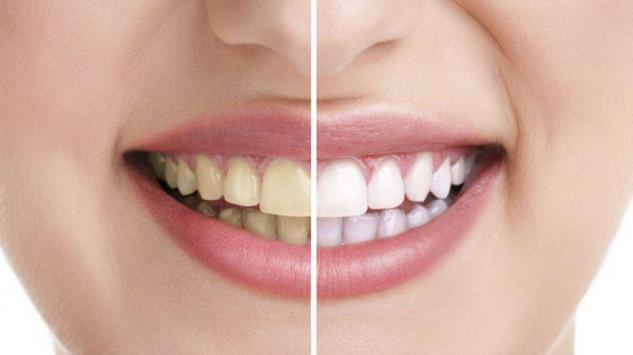 Zubna navlaka cijena