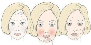 Koje je od njih vaše lice - šteti li vam šećer, vino ili gluten?