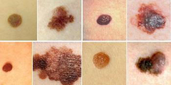 A-B-I-P-P je abeceda raka kože. Naučite je!
