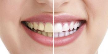 Izbjeljivanje zuba pomoću aluminijumske folije