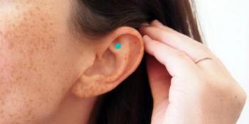 Riješite se stresa dodirom samo jedne tačke u uhu