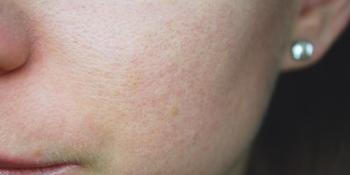 Ovih 7 simptoma otkrivaju da vašoj koži ne prija šećer!