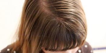 Evo zašto vam se kosa pretjerano masti